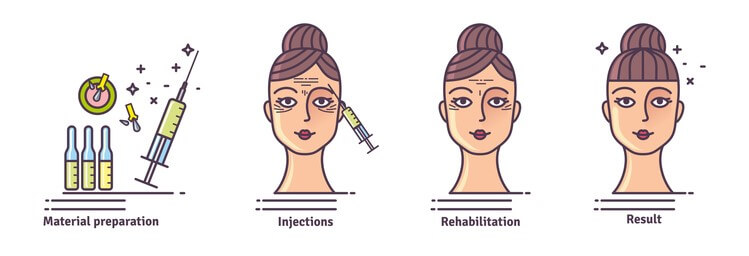 anti wrinkle injections by liverpool osteopaths