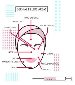 dermal fillers by liverpool osteopaths